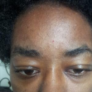 Third Eye Bleeding